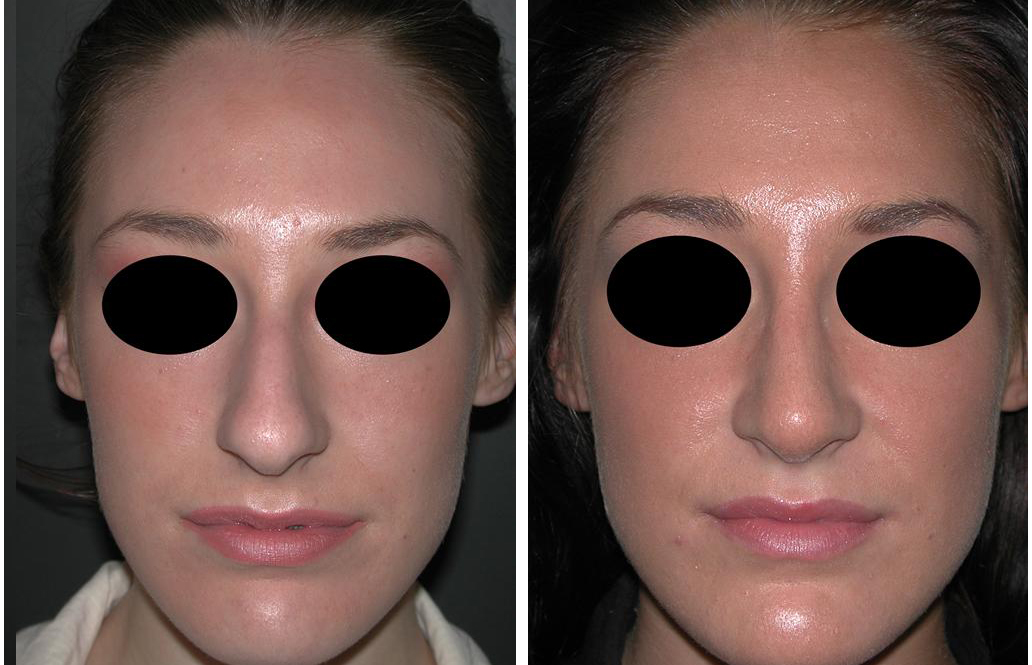 Before and after photos of female nose job in Newmarket