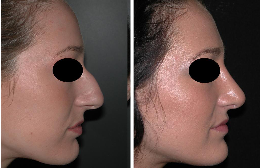 Before and after photos of female Rhinoplasty in Toronto
