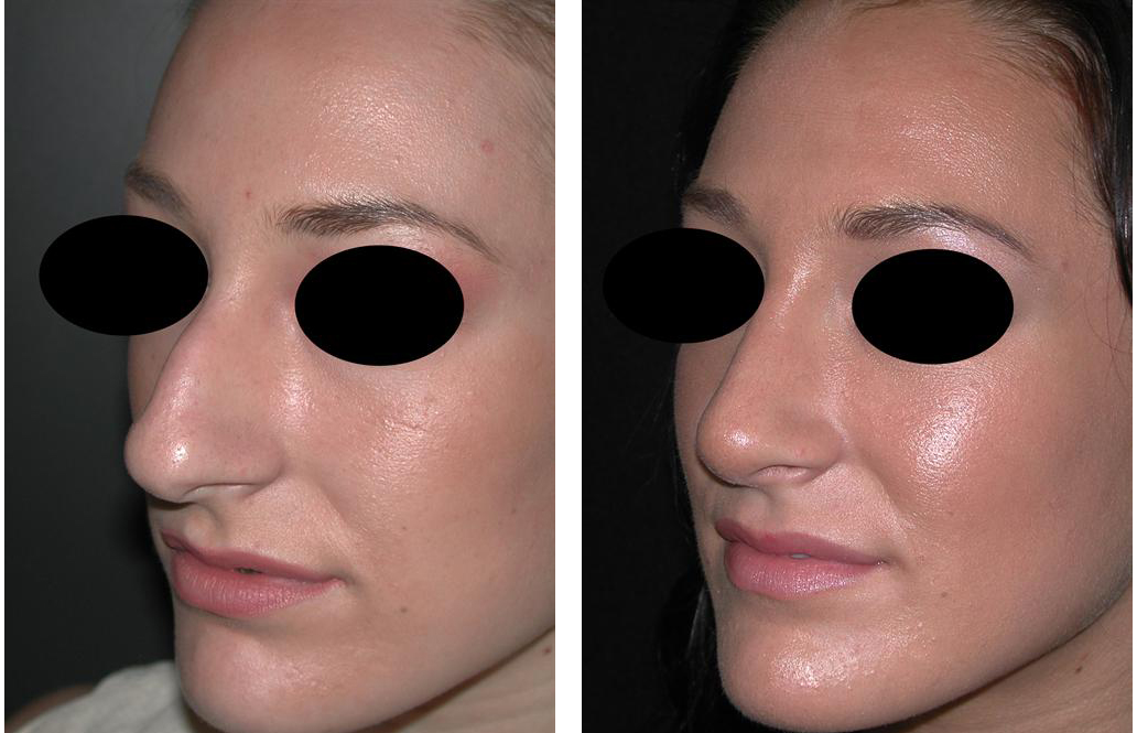 Before and after photos of female rhinoplasty in Newmarket