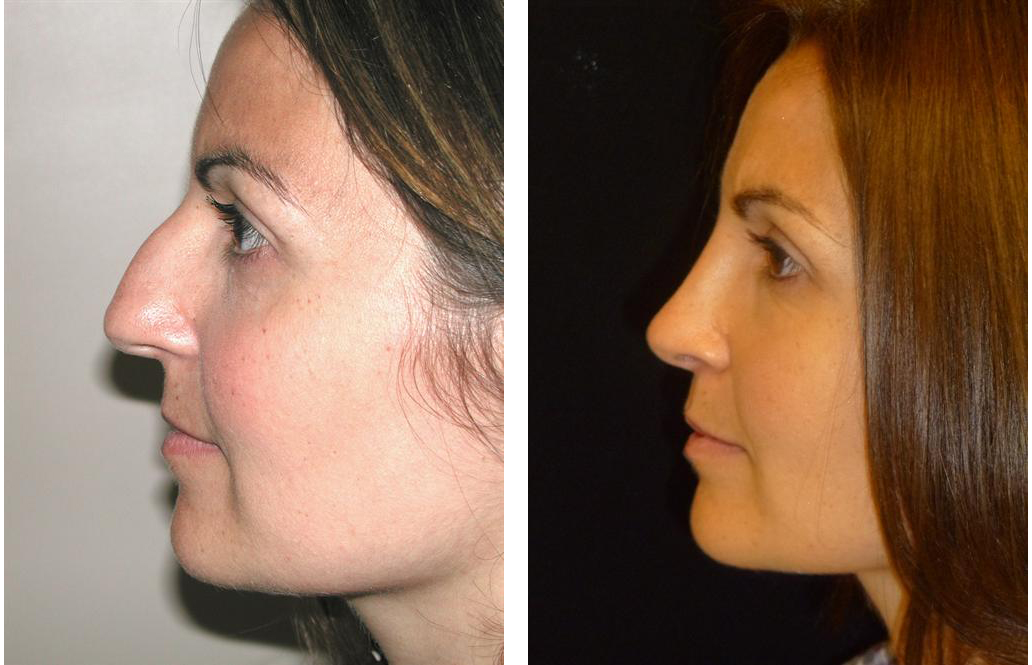 Toronto woman rhinoplasty