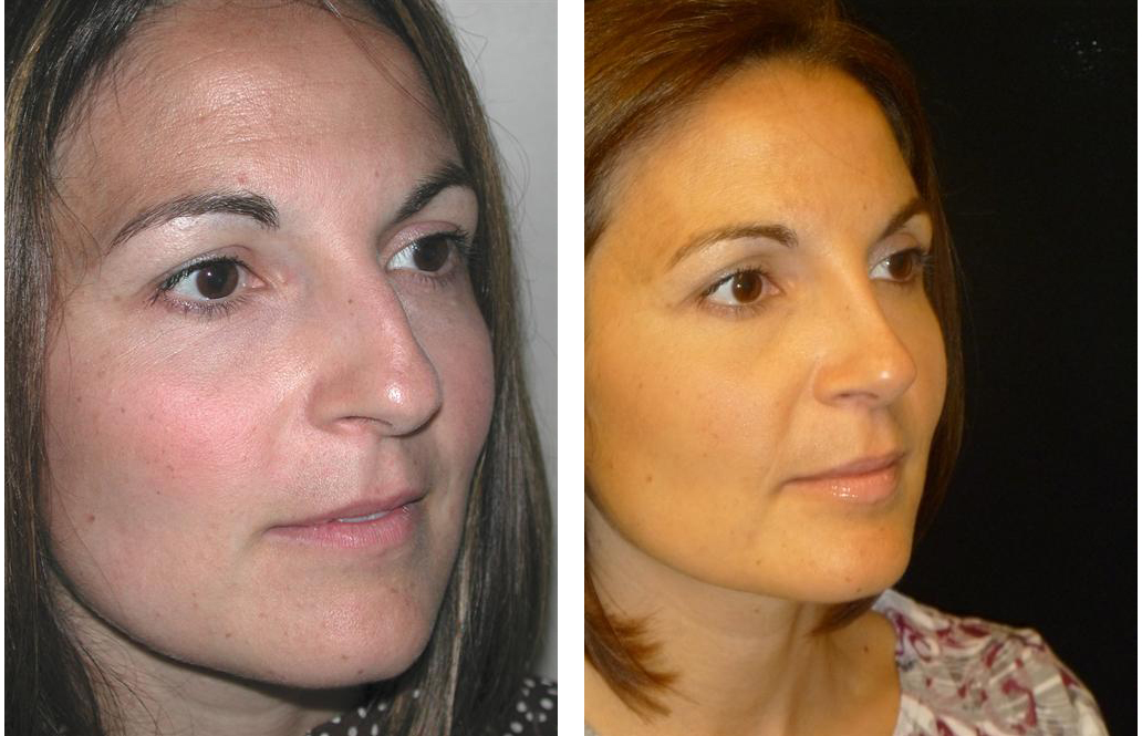 Toronto female nose job