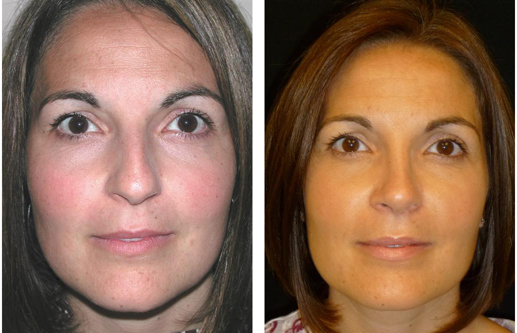 Nose job by Toronto plastic surgeon