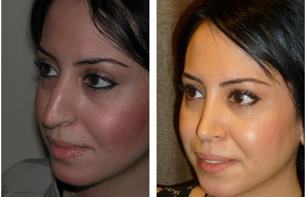 Toronto rhinoplasty done by cosmetic surgeon Dr. Richard Rival