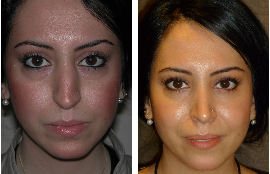 Nose job before and after by Dr. Richard Rival, Toronto's best Cosmetic Surgeon