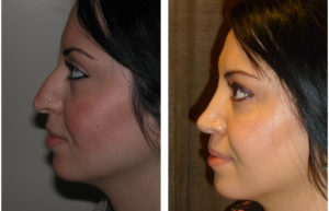 Toronto's best cosmetic surgeon performs a rhinoplasty