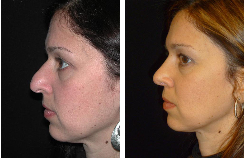 Rhinoplasty done by Toronto plastic surgeon