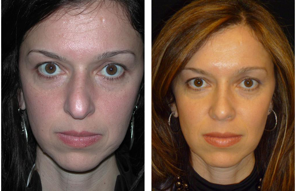 Before and after nose job by best plastic surgeon in toronto