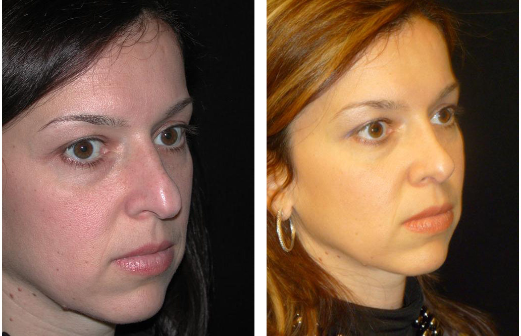 Toronto's best plastic surgeon's rhinoplasty before and after