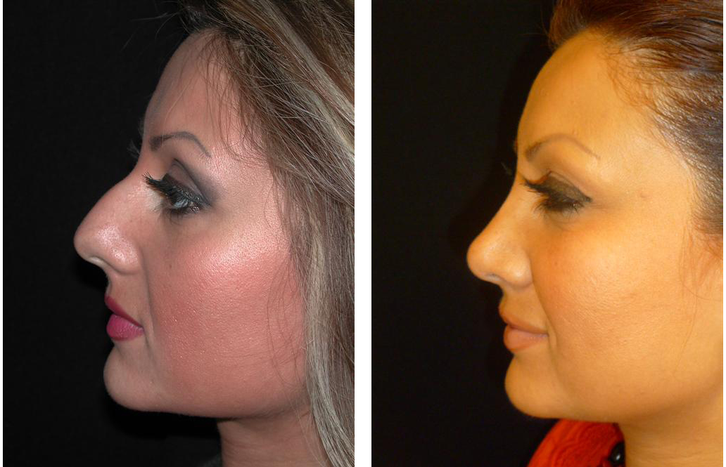 Toronto's best rhinoplasty surgeon