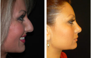 Rhinoplasty surgeon Dr. Richard Rival