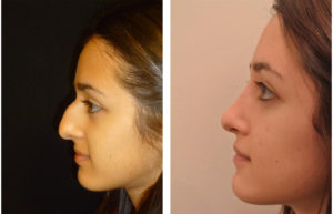 Before and after rhinoplasty photos