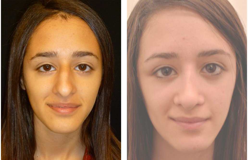 Toronto teen nose job by Dr. Rival