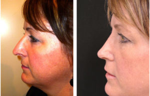 before and after photos of middle aged rhinoplasty on toronto female