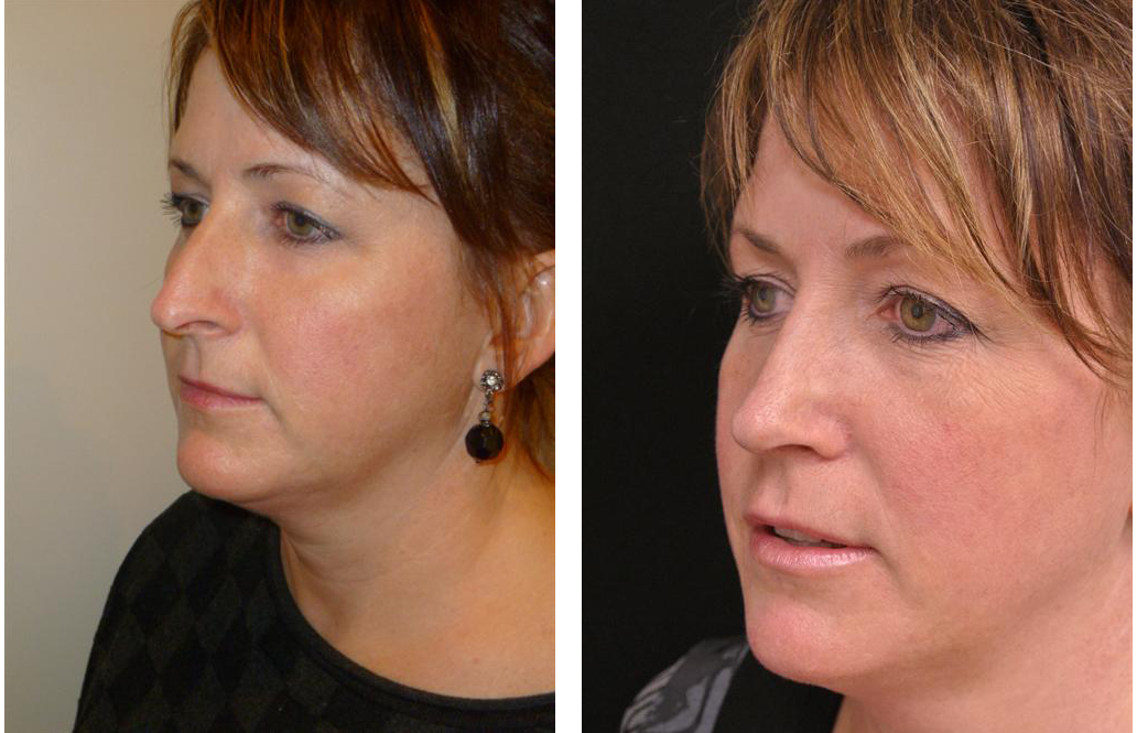 Newmarket rhinoplasty performed on middle aged female