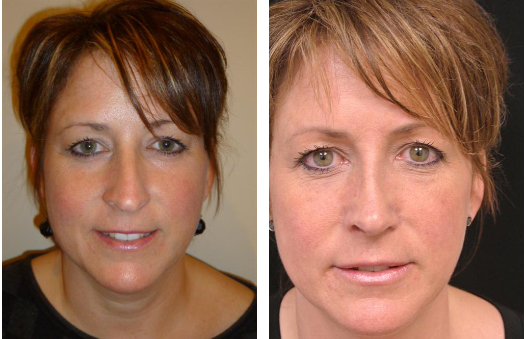 Before and after photos of newmarket nose job by facial cosmetic surgeon Dr. Richard Rival