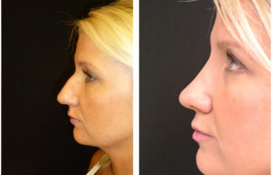 blong female before and after rhinoplasty by Dr. Richard Rival