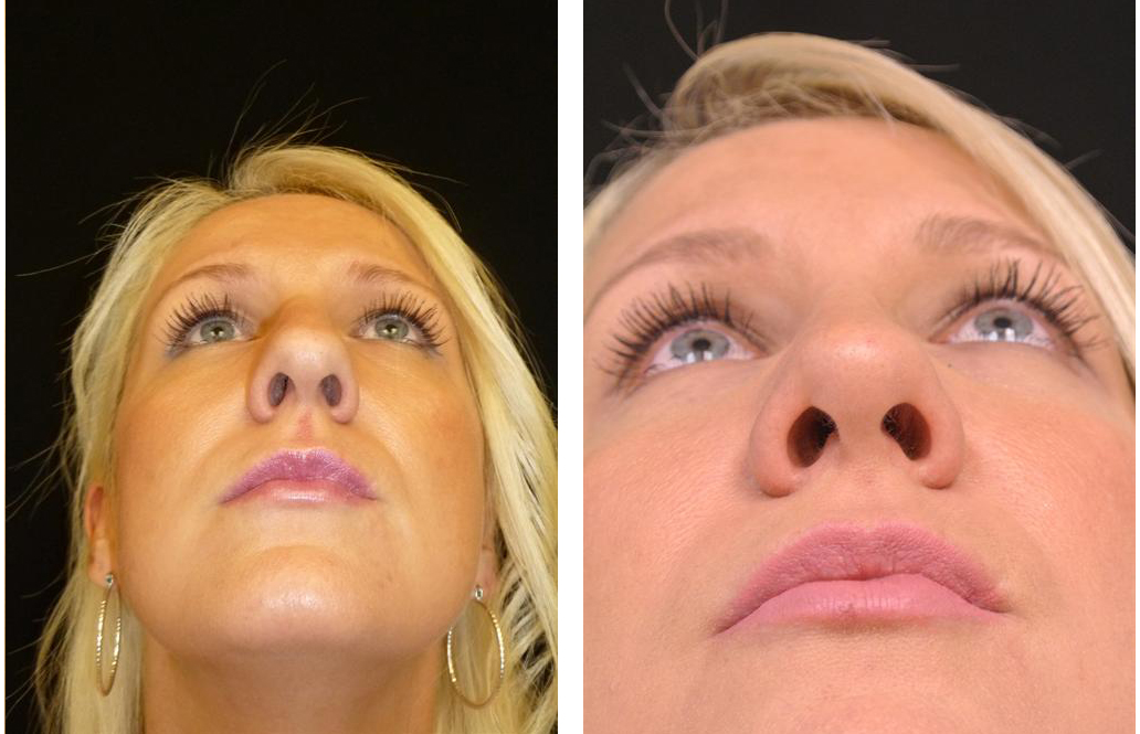 Before and after Toronto rhinoplasty surgery